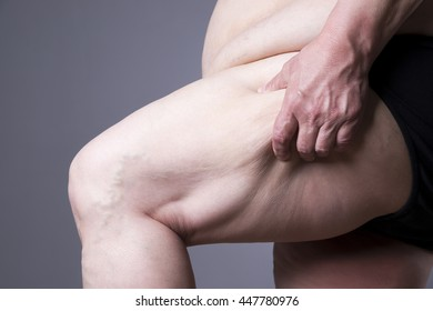 Obesity female body, fat woman legs close up on gray background