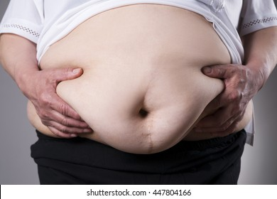 Obesity woman body, fat female belly with a scar from abdominal surgery close up on gray background