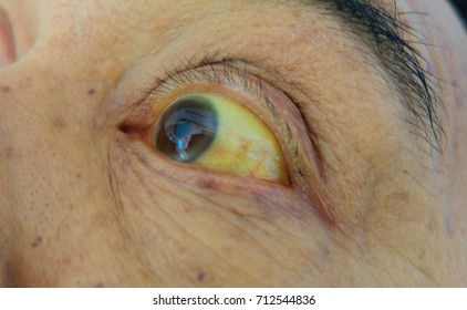 Obstructive Jaundice with severe yellowish discoloration of Eyes.