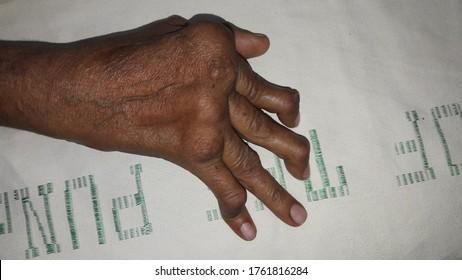 October 27, 2019; Layyah, Pakistan: Rheumatoid hand showing swan neck deformity.