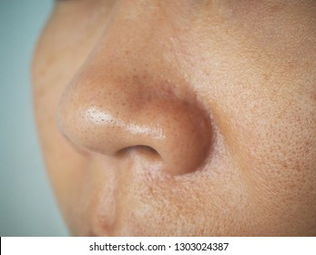 Oily face skin and large pore it is the cause of blackhead pimple on the nose women using for skincare and cosmetics or beauty product concept.
