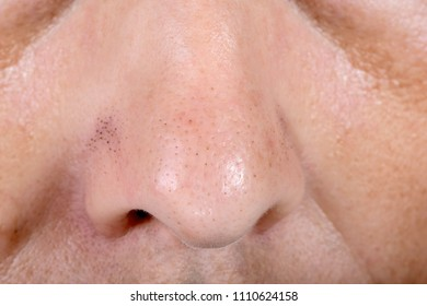 oily skin of nose, blackheads close-up