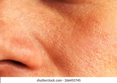 Oily skin and pores on the face of the woman