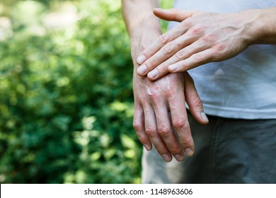 Ointment on hand. Applying the ointment in the treatment and hydration of the skin.Psoriasis skin. Horizontal photo. Copy space on green background