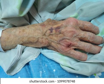 Old age, old age, the hand of a very old woman on hospital bed linen tired and full of age spots With prominent veins time goes by . old woman wonded hand