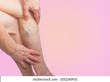 The old age and sick of a woman. Varicose veins on a legs of old woman on blue.