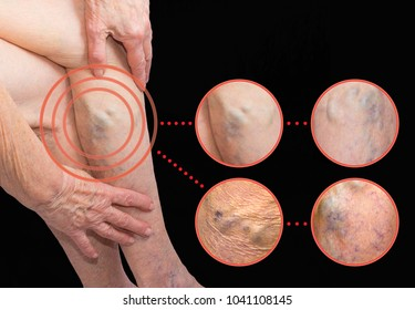 The old age and sick of a woman. Varicose veins on a legs of old woman on blue. The varicosity, spider veins, edema, illness concept. Senior pensioner woman with hands on legs. Gray studio background.