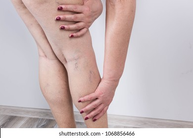 The old age and sick of a woman. Varicose veins on a legs of woman. The varicosity, spider veins, edema, illness concept.Phlebology  and DVT