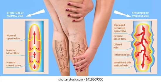 The old age and sick of a woman. Varicose veins on a legs of woman. The varicosity, spider veins, edema, illness concept.