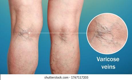 varicoză și eczemă foto