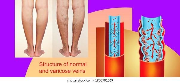 eczema cu fotografie vector de varicoză