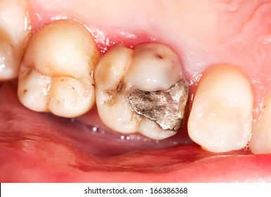 Old amalgam restoration and secondary caries in molar teeth