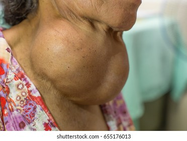 Old Asian female with very large thyroid gland enlargement in zooming closeup lateral view