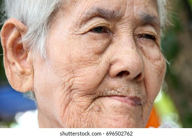 old Asian woman , stroke patient , minor cataract
