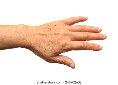 old female hand with freckles