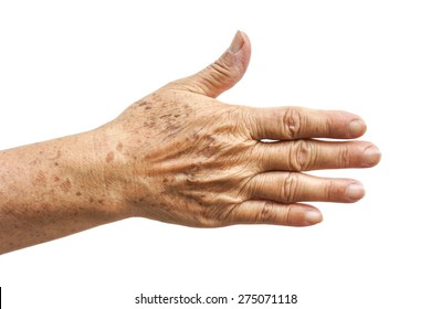 old female hand full of freckles