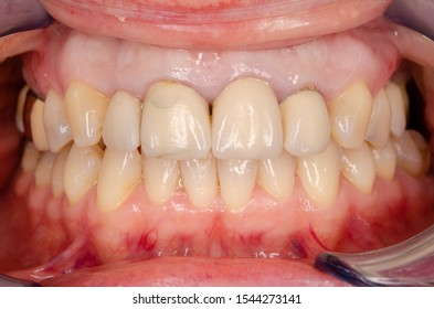 old fractured incisor crowns before renewal
