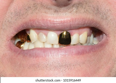 old gold tooth crowns in the mouth of a patient in a dental clinic