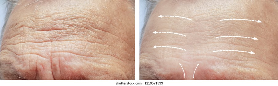 old man face with wrinkles before and after procedures, arrow