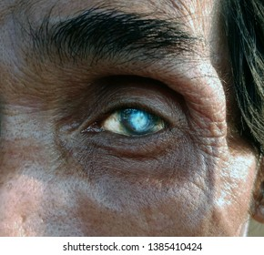 The old man looked directly at the camera, his left eye was a cataract.