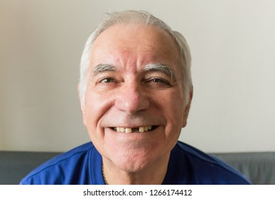 old man senior face closeup missing tooth smile proper tooth care