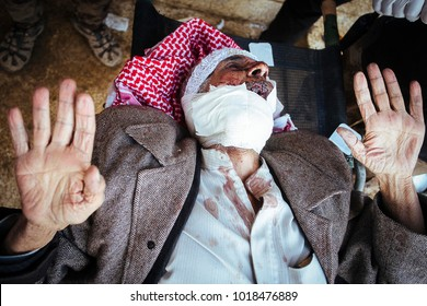 An old man shoot at the jaw at the hospital of Gagjali, a suburb of Mosul, during the offensive against ISIS.Gajali (IQ) 2016/Dec/02