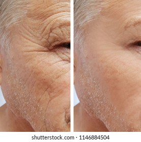 old man, wrinkles on face before and after procedures
