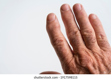 Old mans hand with bent and lumpy finger joints or deformity