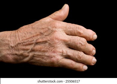 Old man's hand showing evidence of arthritis