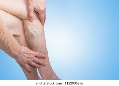 The old and sick woman. Varicose veins on legs on blue. The varicosity, spider veins, edema, illness concept. Senior pensioner with hands on legs. studio background.