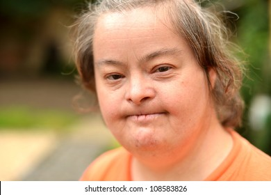 old woman with down syndrome