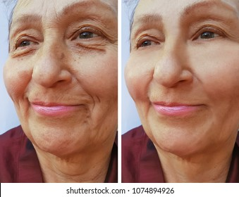 old woman face wrinkles before and after