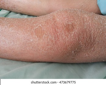 old woman leg with dry skin