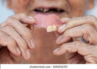 The old woman was wearing dentures into her mouth, her teeth decayed, making it impossible to chew food.
