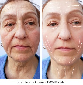 old woman wrinkles before and after the procedure