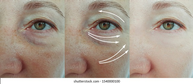 old woman wrinkles eyes   after treatment