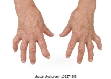 Old Woman's Hands Deformed From Rheumatoid Arthritis Isolated on White Background