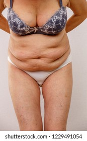 An older woman is leaning forward. The photo shows the folds of the abdomen. Concept for medicine and cosmetology