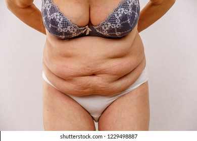 An older woman is leaning forward. The photo shows the folds of the abdomen. Varicose veins on the legs are also visible. Concept for medicine and cosmetology