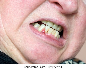 On the gum, an abscess formed, a tumor with purulent contents. Dentist examination.