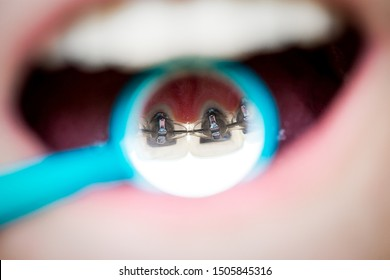 on orthodontic examination, the doctor shows internal lingual invisible braces in the dental mirror, mouth close-up, blurred background
