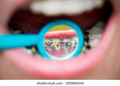 on orthodontic examination, the doctor shows the internal lingual invisible braces in the dental mirror, close-up