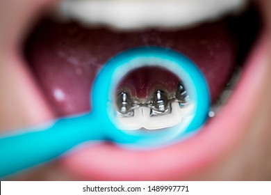 on orthodontic examination, the patient shows internal lingual invisible braces in the dental mirror, mouth close-up, blurred background