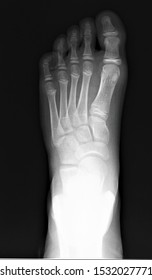 on the x-ray of the foot, a tear-off fracture of the base of the fifth metatarsal bone