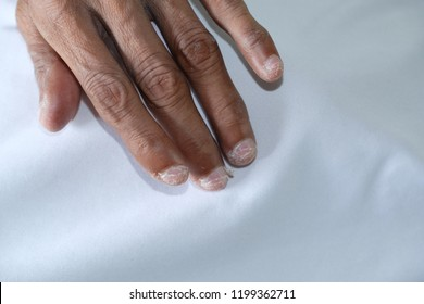 One adult's hand and his bitten fingernails. Close up of Fingers of a poor nail-biter. Nail biting, onychophagy or onychophagia  is an oral compulsive habit.  Soreness of nails and cuticle.