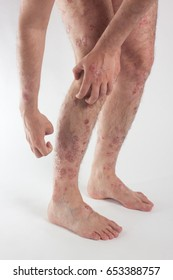 one Caucasian male with psoriasis, eczema, dermatitis on the skin on a light background