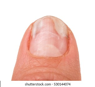 one finger of the hand with a fungus on the nails isolated white background