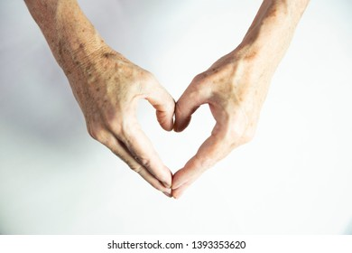 One hand with spots of old age and the other one laser treated