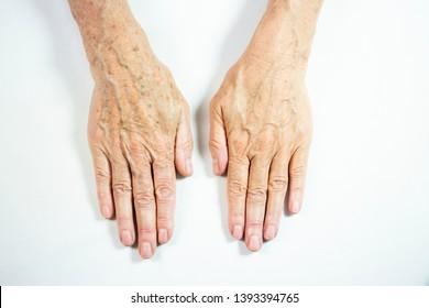 One hand with spots of old age and the other one laser treated.
