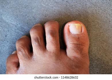onychomycosis foot nail fungus white